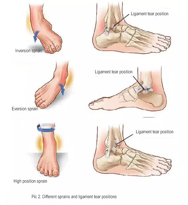 How to deal with sprained ankle joints?